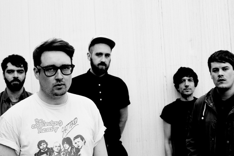 Hookworms - 0714 - Photo Credit Steve Gullick - 6283B - 300 dpi